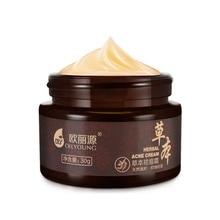 Крем для лица, для ежедневного ухода за кожей, макияж, анти-прыщи, акне, травяной крем, местное очищение, прыщи, красота, отбеливающий крем
