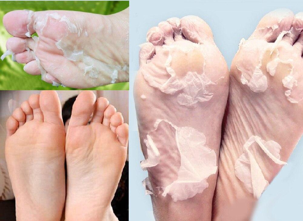 white skin on feet