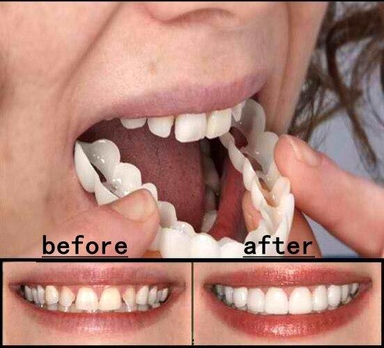 La Dentisterie esthétique Snap On Sourire Instant Parfait Sourire Comfort Fit Flex Dents Adapte Plus Fausses Dents Dent Supérieure Couverture