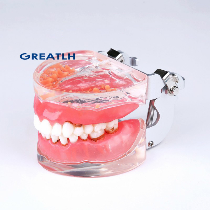 Dental Adult Pathological Periodontal Disease 4017#  Dental Typodont Teeth Model