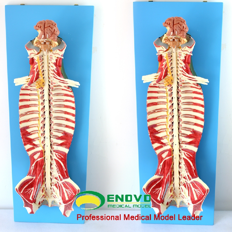 Spinal cord anatomy spinal cord spinal anesthesia spinal cord spinal ...