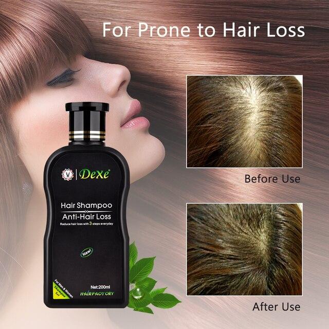 مكافحة فقدان الشعر الشامبو المهنية الصينية العشبية النمو علاج الشعر الشعر منع سميكة منتجات العناية بالشعر للكبار 200 مللي 5