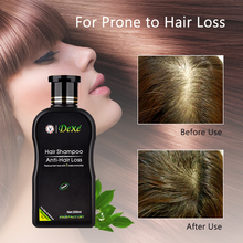 Professional Chinese Herbal Anti-Hair Loss Shampoo