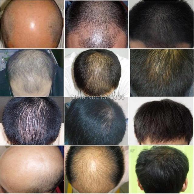 Seborrheic Alopecia Bald Alopecia Areata Hair Care Productsfast