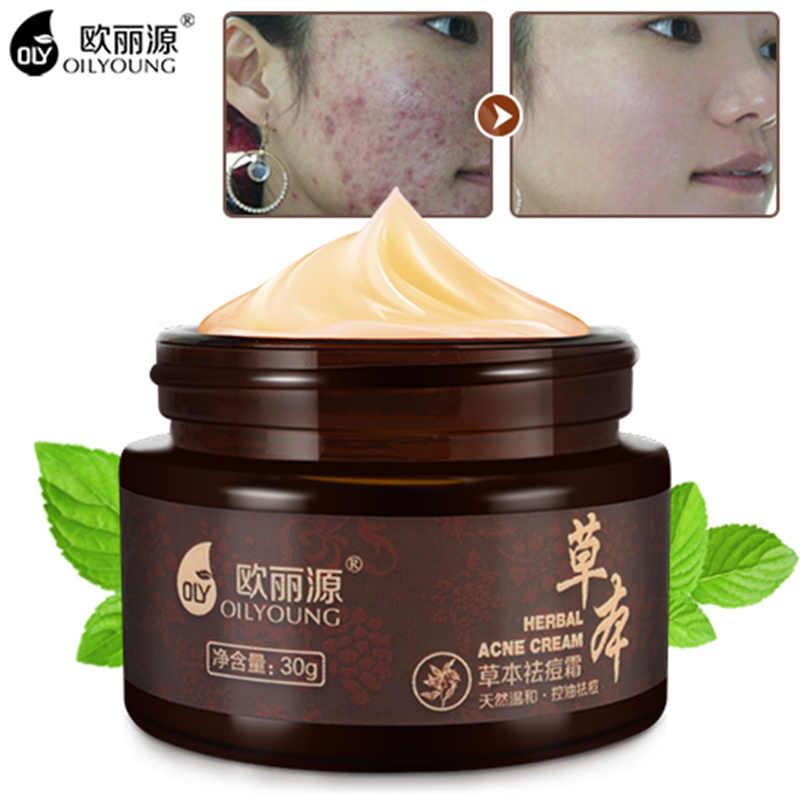 ครีมแต้มสิวเสี้ยนสิวรอยแผลเป็น Blackhead Removal ครีมความงาม Skin Care ครีมการรักษาสิว