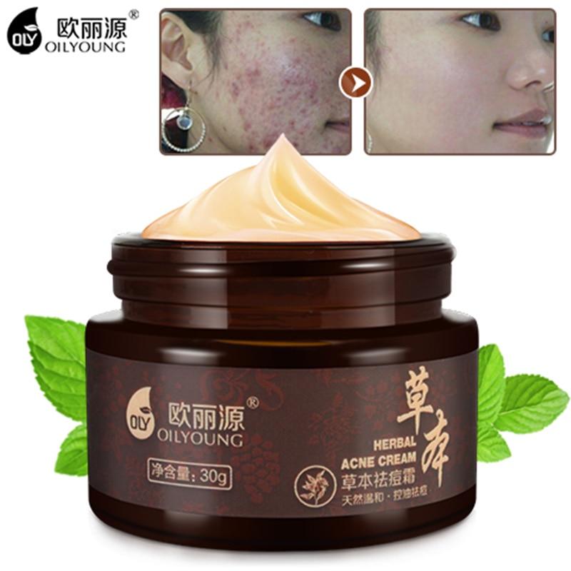 Crema de acné a base de hierbas contra la espinilla Manchas de acné - Cuidado de la piel - foto 1