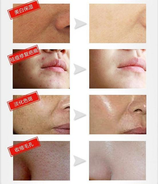 Female Face Care Offer Time-limited Cream Korean Cosmetics Mizon Snail Reduce Scars Acne Pimples Face Anti Wrinkle