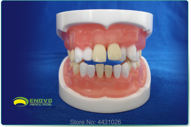 ENOVO Medical qualification examination tooth extraction model oral cavity dental model oral cavity division tooth extraction transparent dental orthodontic mallocclusion model with brackets archwire buccal tube tooth extraction for patient communication