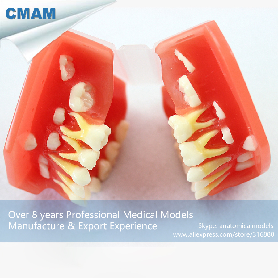 CMAM-DENTAL16 Developmental Study Model w/Removable Pink Silicone Gingiva,Medical Science Educational Teaching Anatomical Models tomy