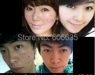 Aoyanlidan acne cream perfect acne cream female male product medicine acne scar remove black