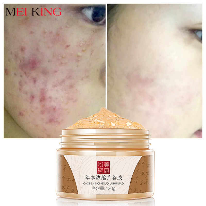 MEIKING Aloe Vera Gel Day Creams 120g Anti Winkle Whitening Moisturizing Anti Acne Treatment Oil Control Face Cream Skin Care 2 boxes anti acne skin gel chinese eczema cream acne removal dispelling cream acne removal skin care aloe vera gel anti acne