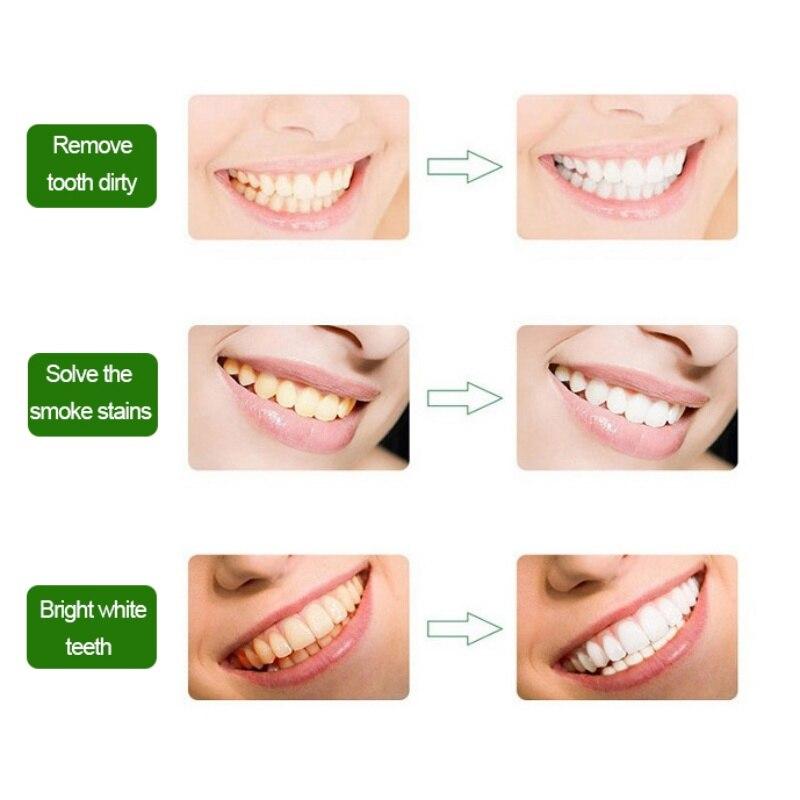 Mutiara Alami Gigi Menyikat Bubuk Mencuci Gigi Kuning Menghilangkan