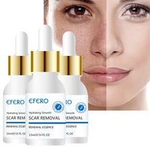 EFERO Essential Oil Control Face Cream Serum Whitening Moist
