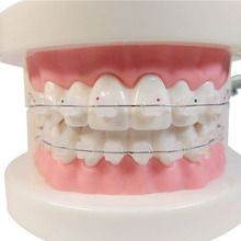 1 piece Dental Orthodontic Teeth Model Ceramic Brackets with Adelomorphic Ligature Tie Buccal Tube NiTi Archwire