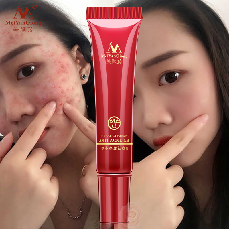 High Quality Herbal Cleansing Gel Face Anti acne treatment cream Herbal scar removal oily skin Acne Spots skin care face 2 boxes anti acne skin gel chinese eczema cream acne removal dispelling cream acne removal skin care aloe vera gel anti acne