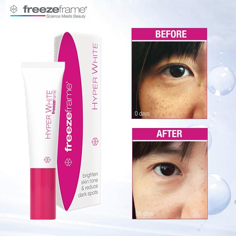 Solution visage Freezeframe crème Hyper blanche éclaircissante ton peau réduit les taches foncées Pigmentation obscurité couleur crème correcte