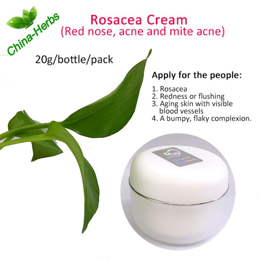 Rosacne cream-1