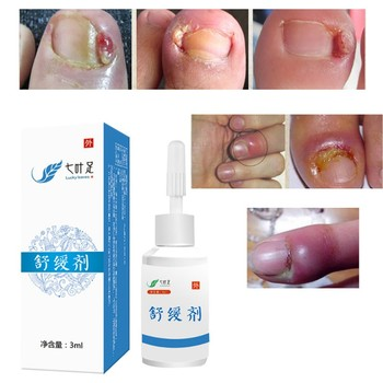 Professional Feet Care Nail Treatment Cream Onychomycosis Paronychia Infection Fights Bacteria and Fungus Anti Fungal Nail Nail Treatments