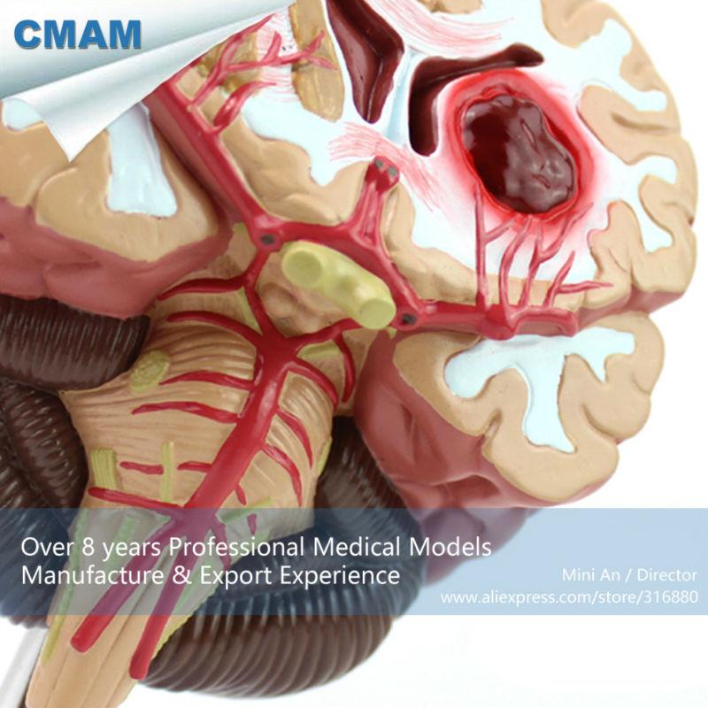 12408 CMAM-BRAIN10 Medical Anatomical Brain Disease Model, Anatomical Model of Cerebral Artery Malformation dissected model of dental disease dental disease pathology decomposition model