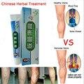 Vasculitis Cream  Treatment  Calf  Vascular Spermatic Vein Drug  Earthworm Legs Convex  VPhlebitis Ointment  20g   S188H