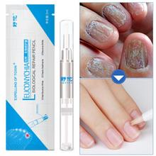 Nail Treatment Pen Onychomycosis Paronychia Anti Fungal Infection Chinese Herbal Toe Fungus