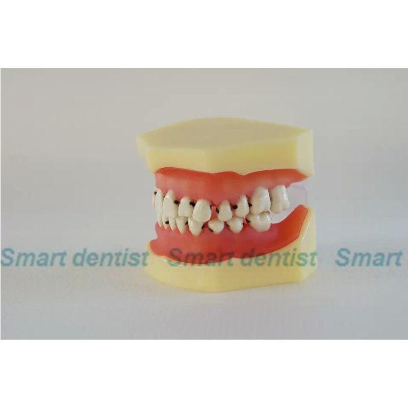 2016 modelo periodontosis diente dientes dental dentista modelo ...