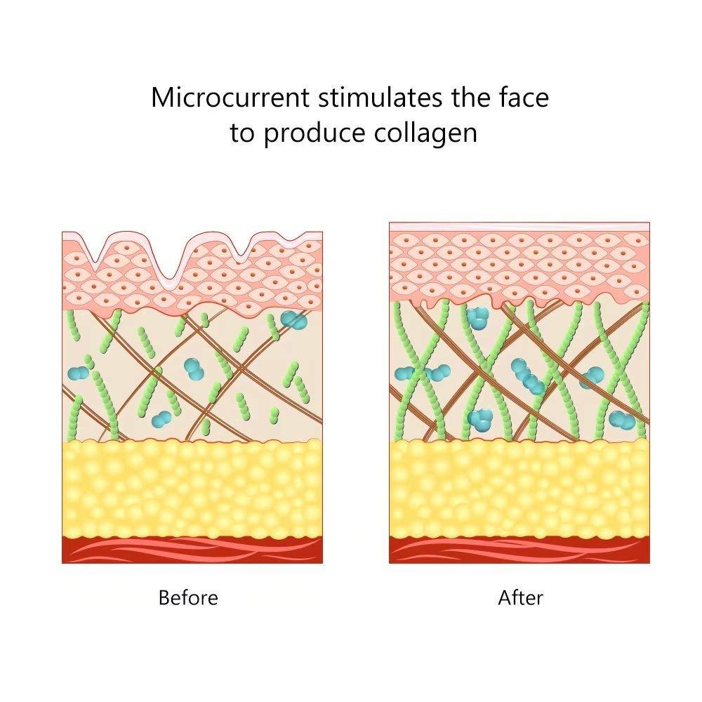 remover rugas rosto dispositivo massagem