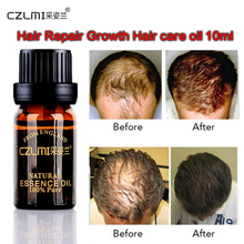 Hair Care Fast Powerful Hair Growth Products Regrowth Essence Liquid T