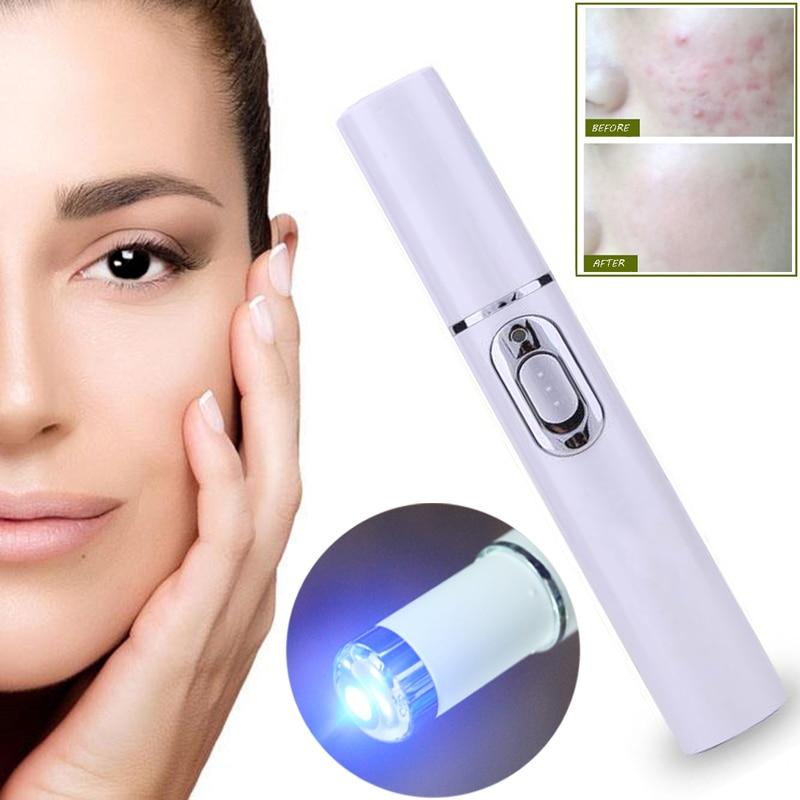 Acné láser portátil máquina de eliminación de arrugas suave Durable cicatriz removedor azul luz pluma terapia masaje venas araña borrador