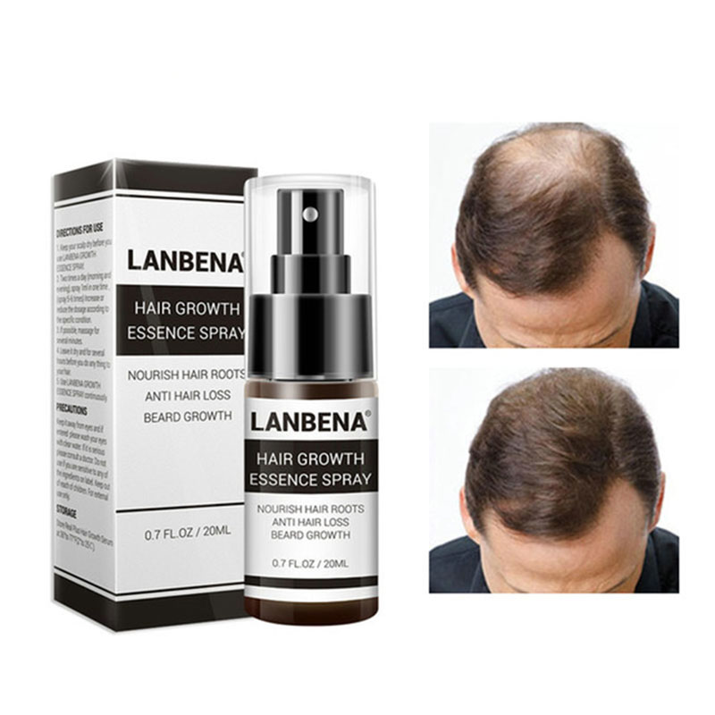 Zhenduo Fast Natura Hair Growth Spray Essence Liquid Dense Regrowth  Treatment Preventing Baldness Consolidating Anti Hai