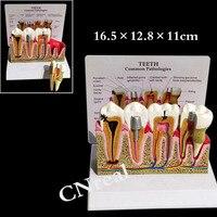 1 pc להסרה שיניים אנטומיים שיני דגם עם איור ובסיס עבור חינוך האנטומיה שן