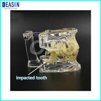 Dental Implant Teeth Dental Pathological Teeth Implant Model