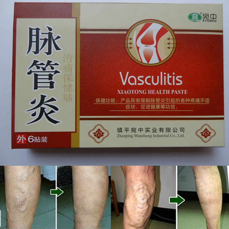 24 Pcs Spider Veins Varicose Treatment Plaster Varicose Veins Cure Patch Vasculitis Natural Solution Herbal Patches hurbolism cure tinnitus tea bag natural herbal secret formula for cure hearing loss and deafness herbal tea