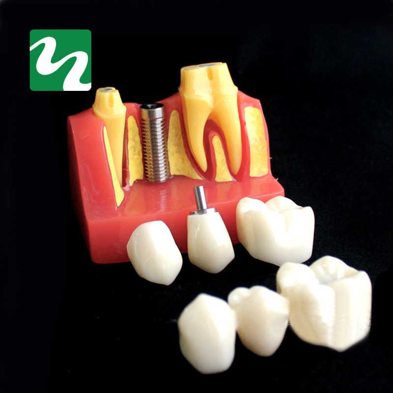 1 PC 4 razy sadzenia Model zębów jamy ustnej Model nauczania patologii stomatologicznej Model dla laboratorium dentystycznego