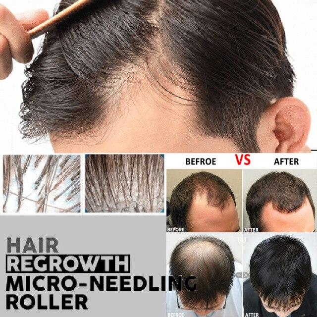 שיער לצמיחה מחודשת במייקרו דיקור רולר צמיחת זקן מוצר אנטי נשירת שיער מוצרי שיער עבה ומלא יותר להאיץ שיער צמיחה