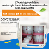 2016 New 17inch High Definition Endoscopic Dental Intraoral Camera Monitor One Machine With Sony Camera And