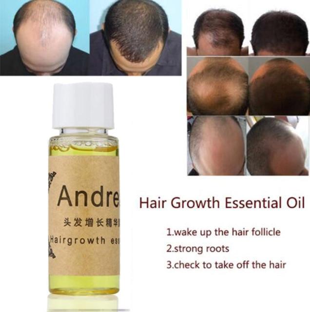 אנדריאה צמיחת שיער אנטי שיער אובדן נוזל 20 ml 100% טבעי תמצית עם טבעי שיער לצמיחה מחודשת מהיר, עבה, אנדריאה צמיחת שיער Oi