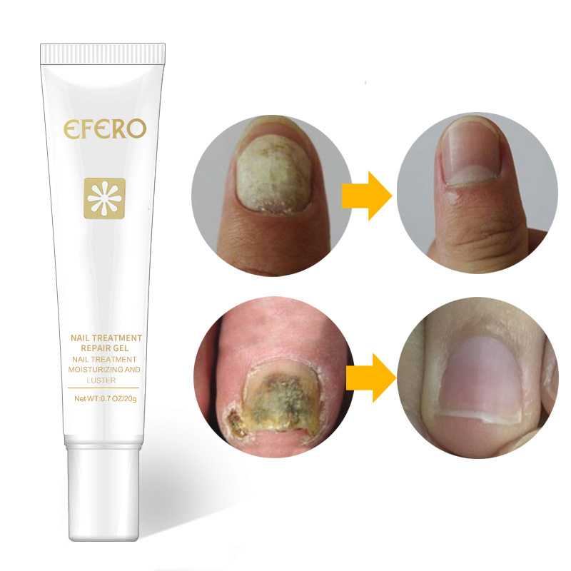Efero Toe Nail Repair Cream Nail Fungus Removal Gel Anti Infection Nails Health Beauty Accessories Onychomycosis Nail Care TSML1