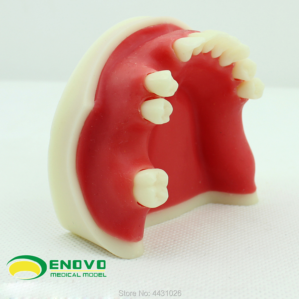 ENOVO The dental implant teaching of dental implant was simulated enovo the dental implant was sutured in the oral cavity of maxillary sinus dentition