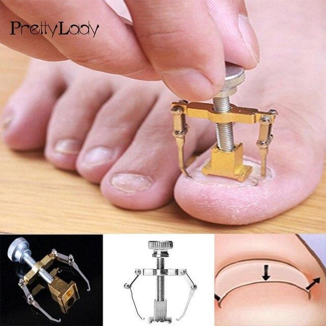 FOCALLURE Ingrown Toe Nail Fixer Pedicure Toenail Recover Nail ...