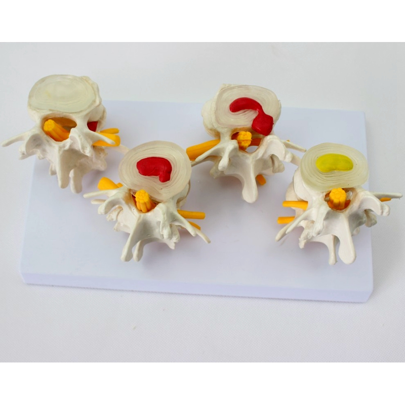 4 pcs different level one set Medical human Lumbar disc hernia Demo Model demonstration model spine