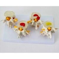 4 pcs different level one set Medical human Lumbar disc hernia Demo Model demonstration model spine model