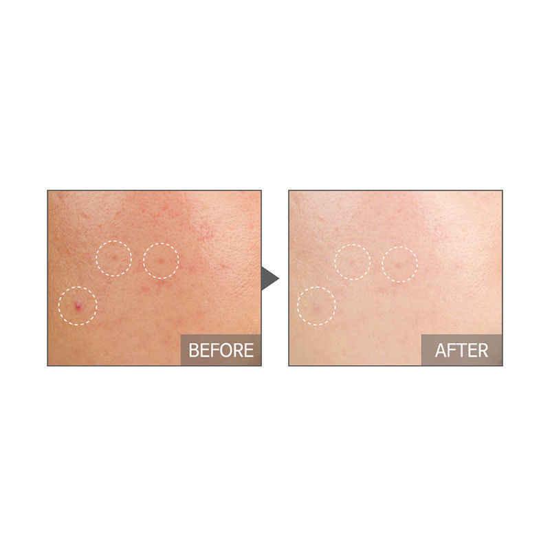 Coreia cosméticos tiam minha assinatura red c soro 30ml vitamina c 20 soro creme facial anti enrugamento branqueamento
