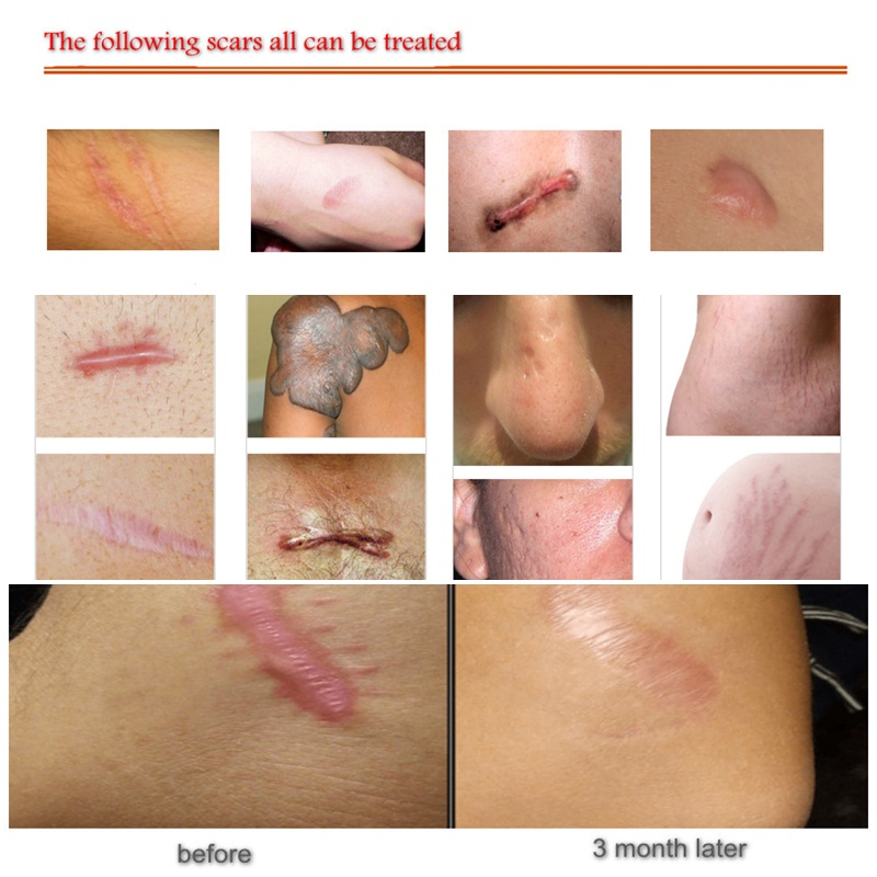 60ml Silicone Gel Scar Therapy Spray Treatment Burn Pimple Scar Removal Maternity Face Body Repair Fast Use For Sunscreen Makeup in Face Skin Care Tools from Beauty Health