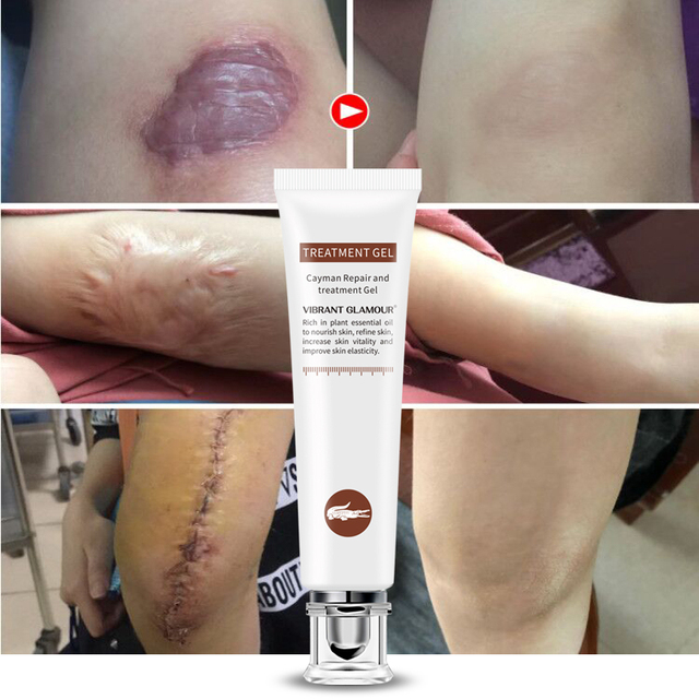 VIBRANT GLAMOUR Repair Scar cream Removal Acne Scars Stretch Marks CreamSurgical scar Burn  For Body Pigmentation Corrector care
