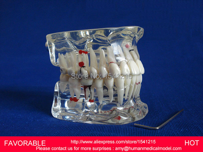 DENTAL PATHOLOGY MODEL ANATOMICAL MODEL TEETH MODEL DENTAL CARIES ,ADULT DENTAL PATHOLOGICAL DENTITION MODEL-GASEN-DEN046 soarday 1 piece 2 times dental pathological model display deep caries shallow caries teaching model