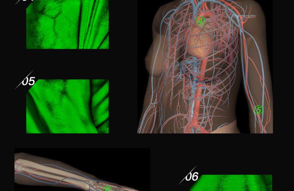 Позволяет найти кровеносные сосуды, визуализация вены, сосудистый дисплей, безопасная пункция, осмотр кровеносных сосудов