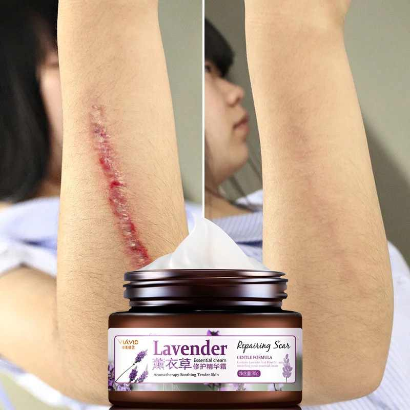 30g Lavender Acne Scar Removal Cream For Face Body Legs Skin Care