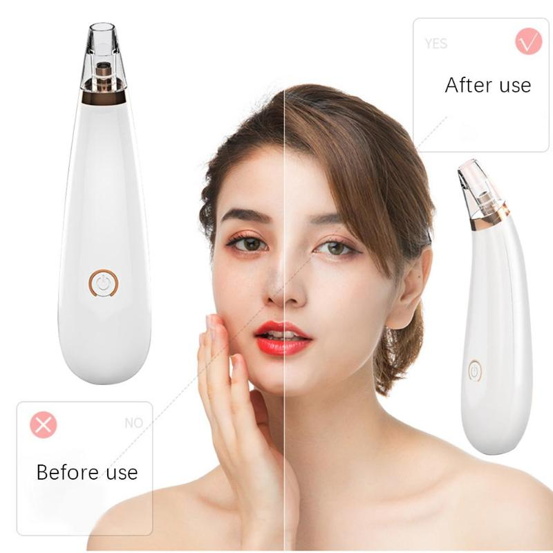 Electric Blackhead Remover Pore Vacuum Suction Diamond Dermabrasion Face Cleaner With 2/6pcs Suction Heads