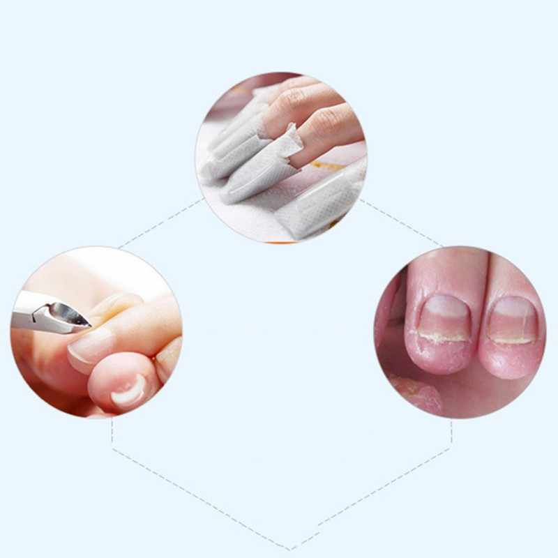 Detail Feedback Questions about Fungus Stop Anti Fungal Nail ...